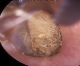 耳の穴から綿棒を取り除く