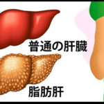 肝臓が助けを求めている10のサイン