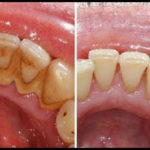 【動画】家で出来る簡単に 歯石を除去する方法5選